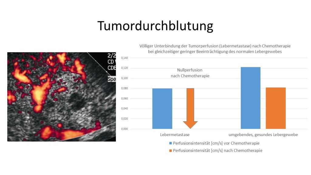 Durchblutungsmessung eines Lebertumors unter Chemotherapie