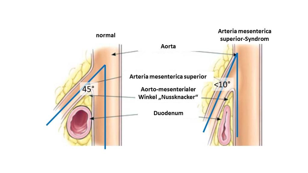 Anatomie AMS